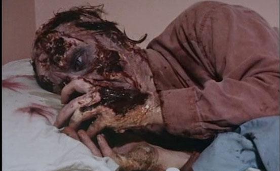 moi-zombie-chronique-de-la-douleur-de-andrew-parkinson